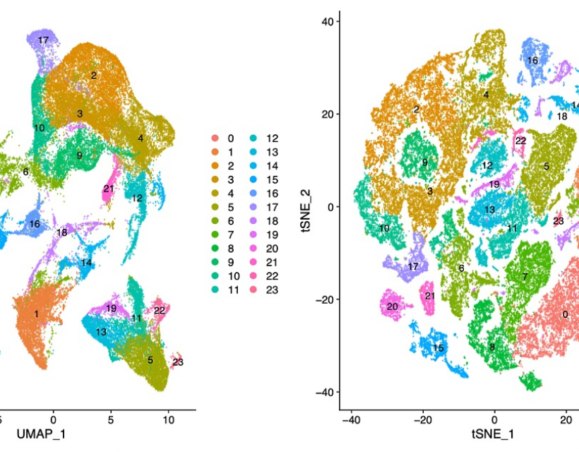 The complexities of the multiple myeloma bone marrow microenvironment by Anna James-Bott
